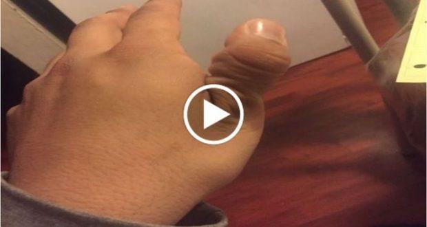 Reto viral invita a las personas a romperse el dedo pulgar