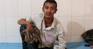 Abul Bajandar sufre de una condición en la piel extremadamente rara. Él se ha sometido a 16 operaciones para eliminar crecimientos descontrolados de sus manos y pies.
