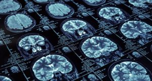 Expertos creen factible tener una cura para el Alzheimer en el 2025