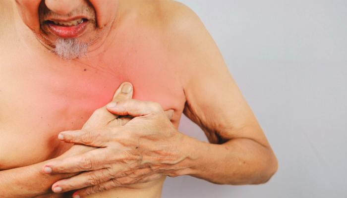 Desarrollo de mamas en hombres