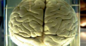 Investigadores afirman que después de morir el cerebro continúa consciente