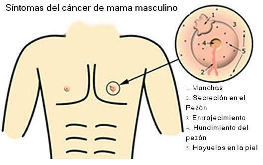 ¿Sabías que el cáncer de mama puede afectar a ambos sexos, tanto hombres como mujeres?