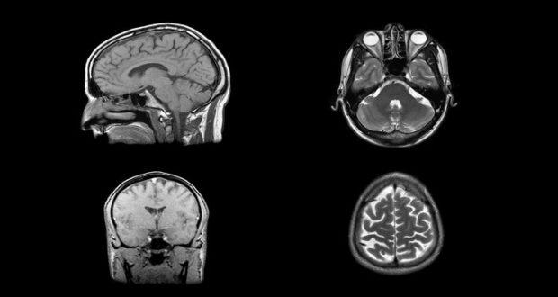 Investigadores han descubierto cómo mejorar el rendimiento de la memoria en los seres humanos al usar un implante en el cerebro