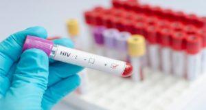 Médicos logran controlar al SIDA usando un método anticancerígeno