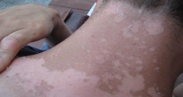 La exposición al sol puede causar quemaduras y malestar en la piel. Aquí te decimos como curarlas.