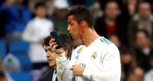 Se viraliza la reacción de Cristiano Ronaldo al saber que tenia una herida en el rostro