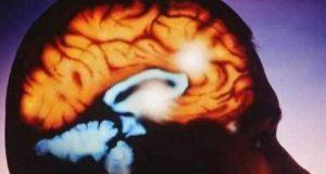 """Reportan en América Latina el primer deceso por la ameba """"come cerebros"""""""