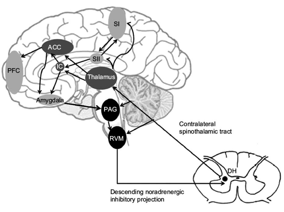 cerebro percibe el dolor.