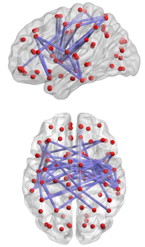 Conexiones cerebrales.