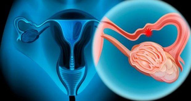 cancer de ovario