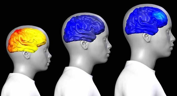 Cerebro adolescente.