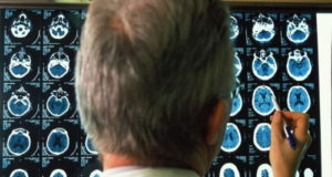 progresión del alzhéimer