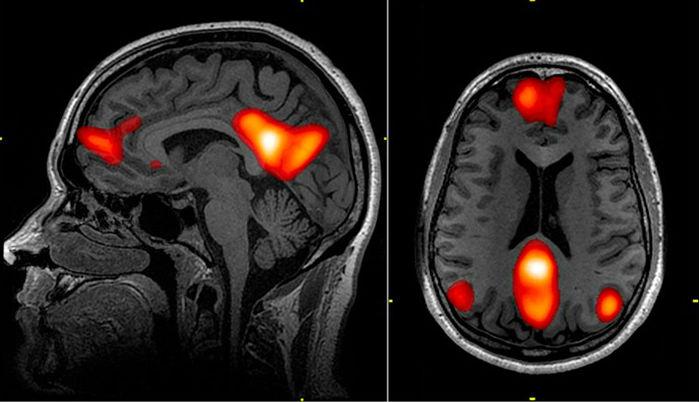 La corteza medial prefrontal