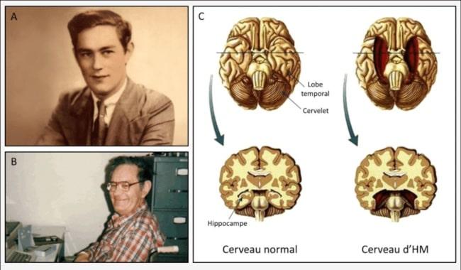 cerebro henry molaison