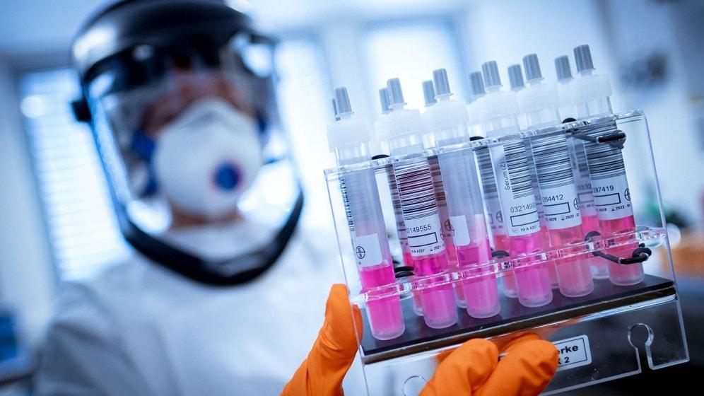 OMS anuncia desarrollo de vacunas del corvid-19