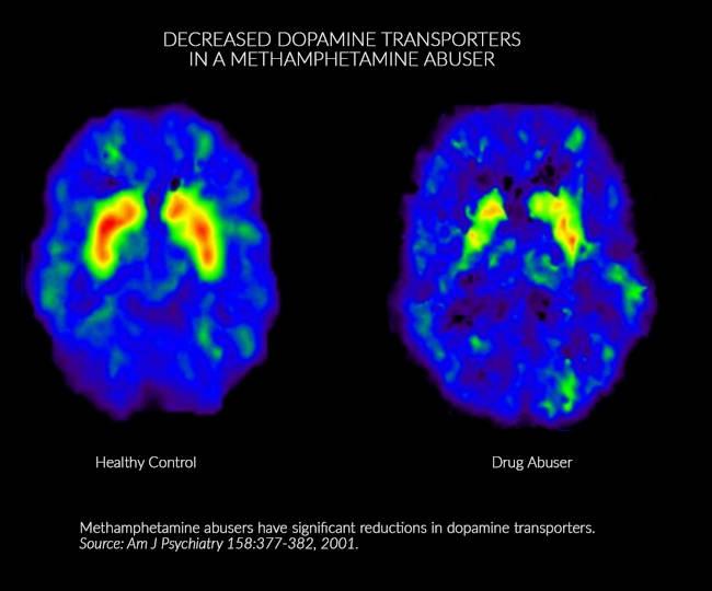 cerebro de los adictos a