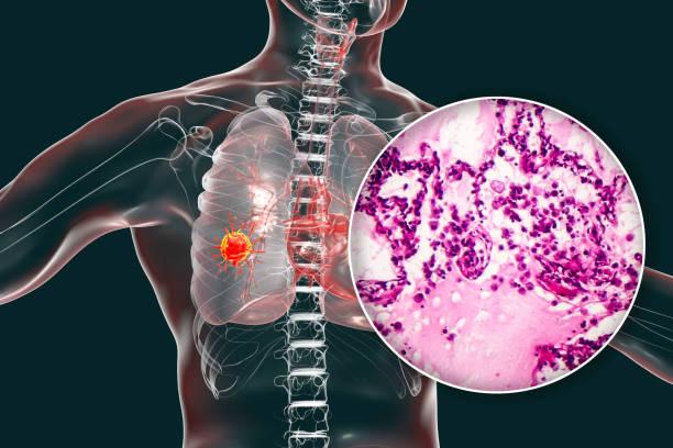 Universitarios obtienen premio por hallazgo en pacientes con cáncer de pulmón